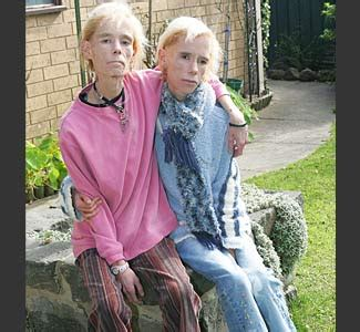Anorexic Wallmeyer Twins Die in House Fire